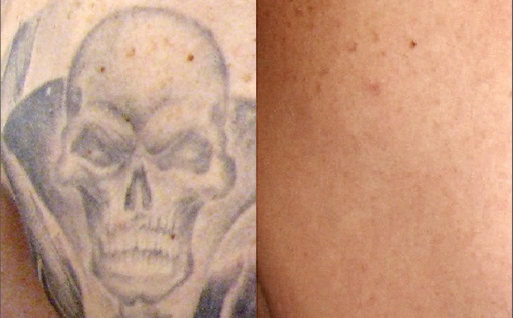 Tattoo removal worth it wheaton laser tattoo removal for Laser hair removal over tattoo