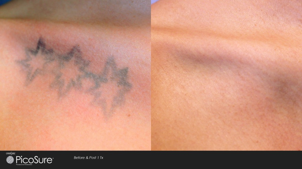 Oakbrook terrace laser tattoo removal for Tattoo removal healing