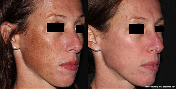 Before Amp After Photos Laser Aesthetic Center