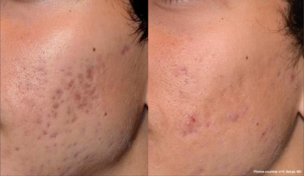 PicoSure Focus laser scar treatment