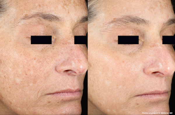 Hinsdale laser skin resurfacing