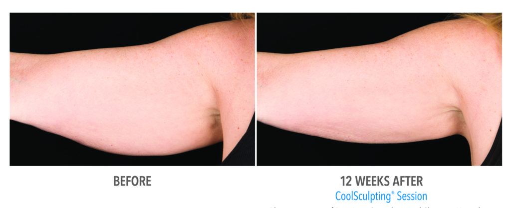 Finally A Fix For Flabby Arms Laser Aesthetic Center
