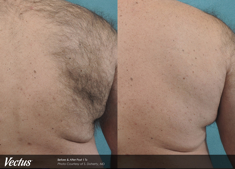 before and after Hinsdale laser hair removal for men