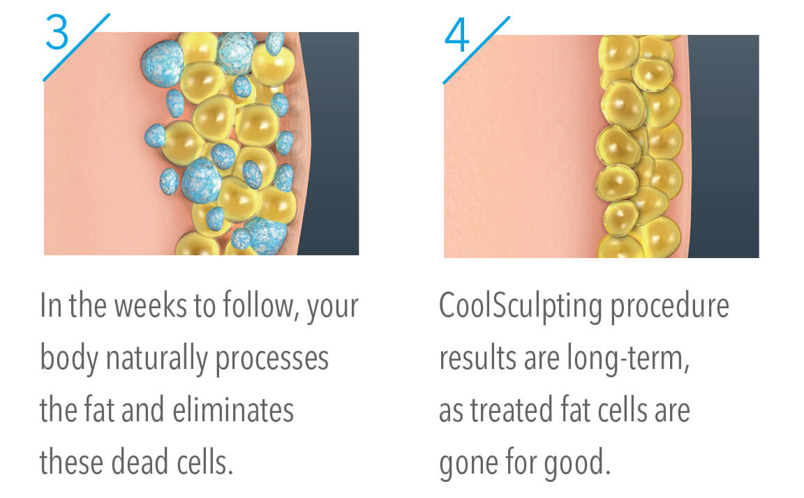 Hinsdale CoolSculpting process