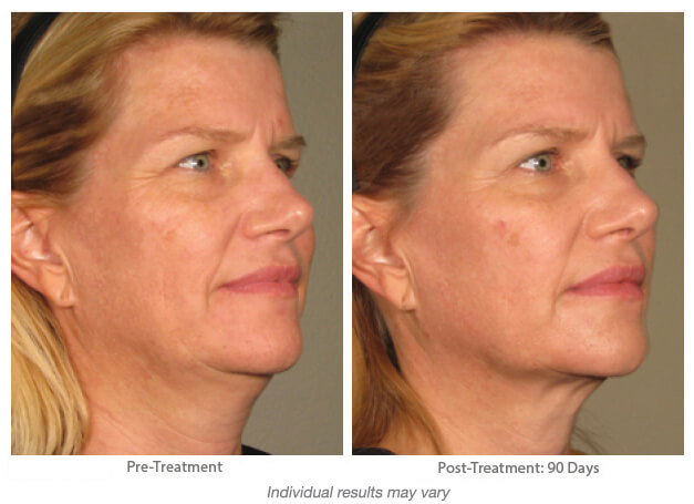 before and after Hinsdale Ultherapy