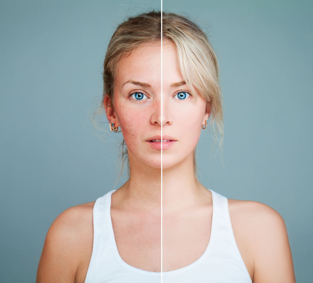 Visual acne scar treatment evaluation