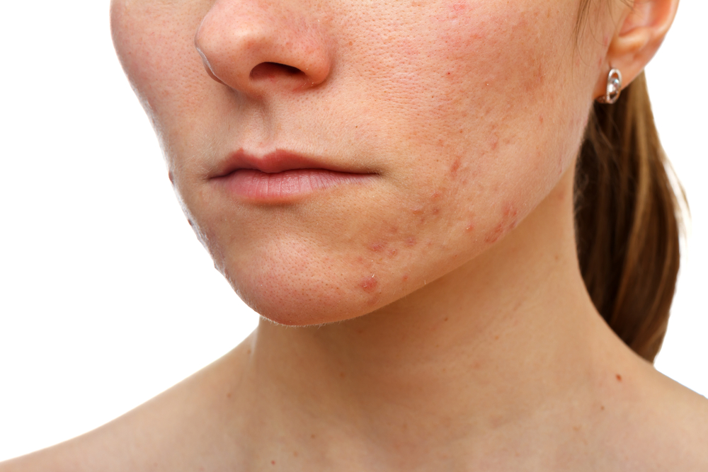 Acne Scarring Treatments